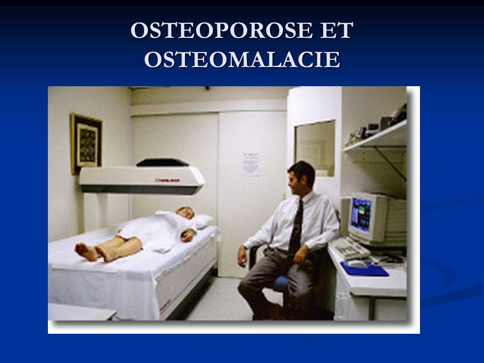 OSTEOPOROSE ET OSTEOMALACIE
