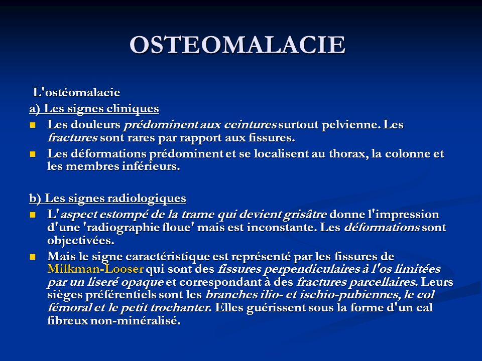 OSTEOMALACIE L'ostéomalacie L'ostéomalacie a) Les signes cliniques Les douleurs prédominent aux ceintures surtout pelvienne. Les fractures sont rares