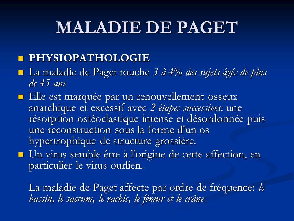 MALADIE DE PAGET PHYSIOPATHOLOGIE PHYSIOPATHOLOGIE La maladie de Paget touche 3 à 4% des sujets âgés de plus de 45 ans La maladie de Paget touche 3 à