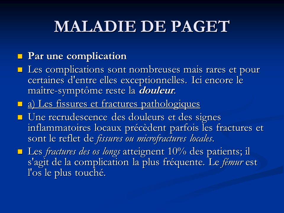 MALADIE DE PAGET Par une complication Par une complication Les complications sont nombreuses mais rares et pour certaines d'entre elles exceptionnelle