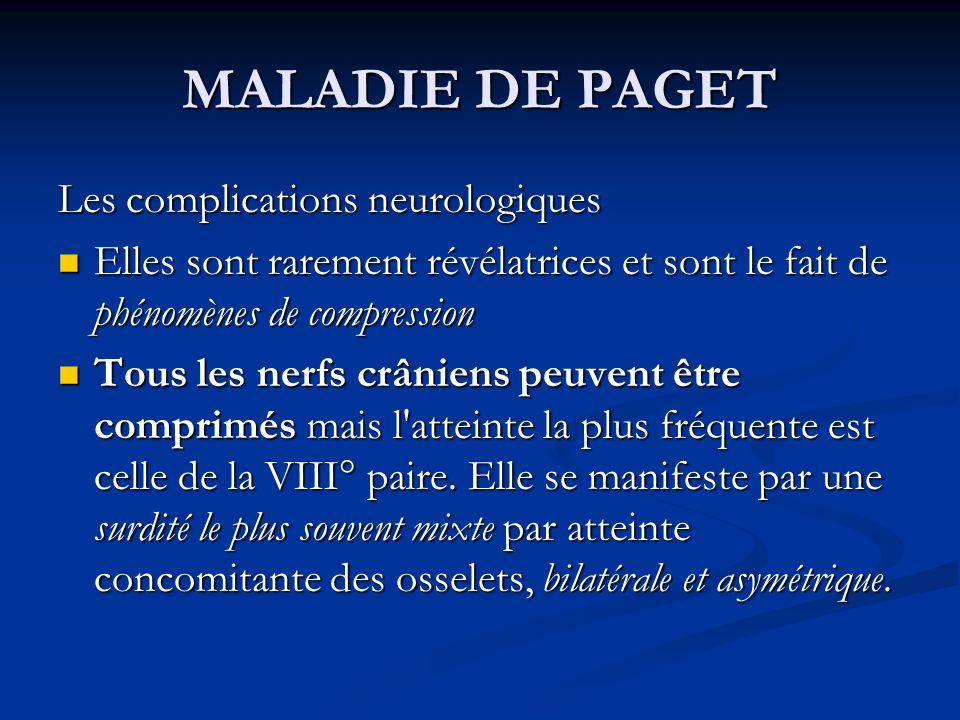 MALADIE DE PAGET Les complications neurologiques Elles sont rarement révélatrices et sont le fait de phénomènes de compression Elles sont rarement rév