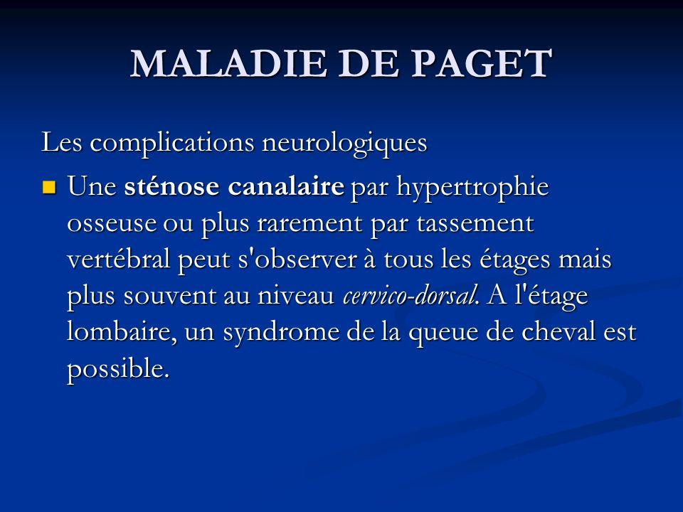 MALADIE DE PAGET Les complications neurologiques Une sténose canalaire par hypertrophie osseuse ou plus rarement par tassement vertébral peut s observer à tous les étages mais plus souvent au niveau cervico-dorsal.