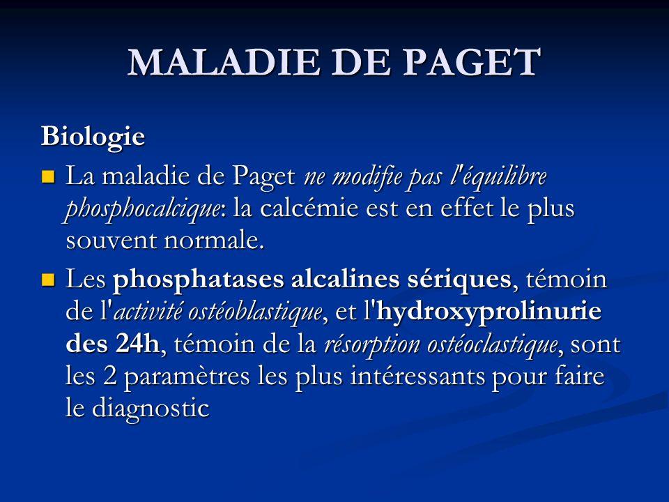 MALADIE DE PAGET Biologie La maladie de Paget ne modifie pas l'équilibre phosphocalcique: la calcémie est en effet le plus souvent normale. La maladie