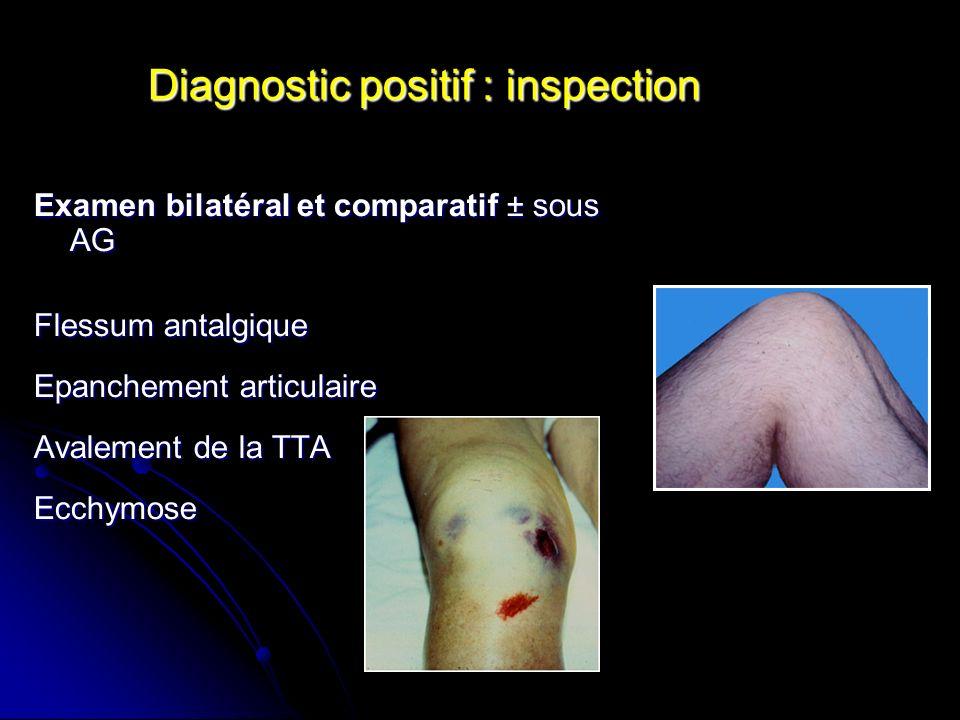 Diagnostic positif : inspection Examen bilatéral et comparatif ± sous AG Flessum antalgique Epanchement articulaire Avalement de la TTA Ecchymose