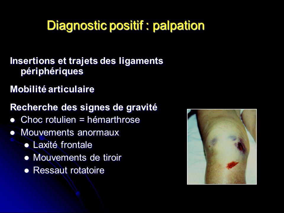 Diagnostic positif : palpation Insertions et trajets des ligaments périphériques Mobilité articulaire Recherche des signes de gravité Choc rotulien =