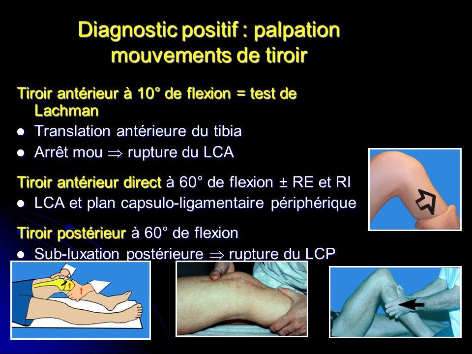 Diagnostic positif : palpation mouvements de tiroir Tiroir antérieur à 10° de flexion = test de Lachman Translation antérieure du tibia Translation an