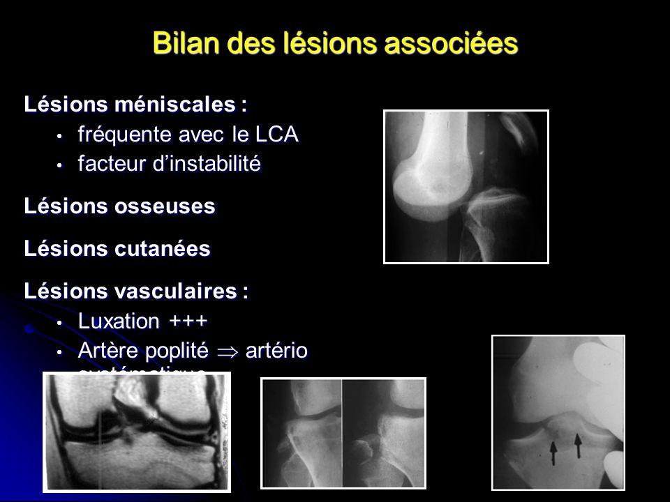 Bilan des lésions associées Lésions méniscales : fréquente avec le LCA fréquente avec le LCA facteur dinstabilité facteur dinstabilité Lésions osseuse