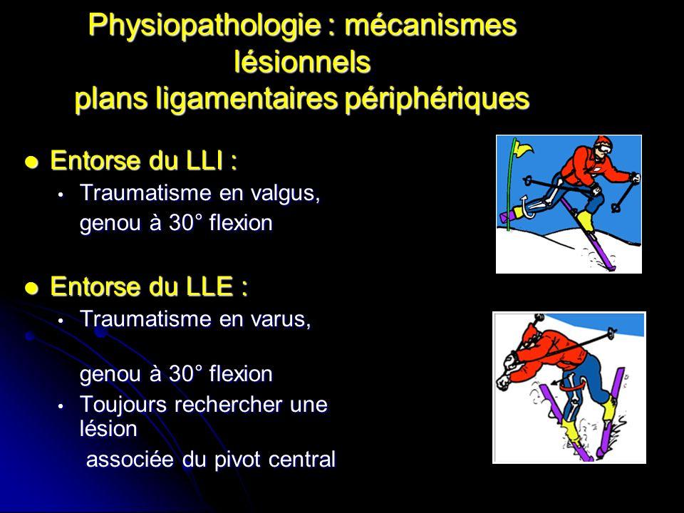 Physiopathologie : mécanismes lésionnels du pivot central Lésion du pivot = entorse grave LCA isolé : hyper-extension active non appuyée hyper-extension active non appuyée rotation interne isolée (ski) rotation interne isolée (ski)