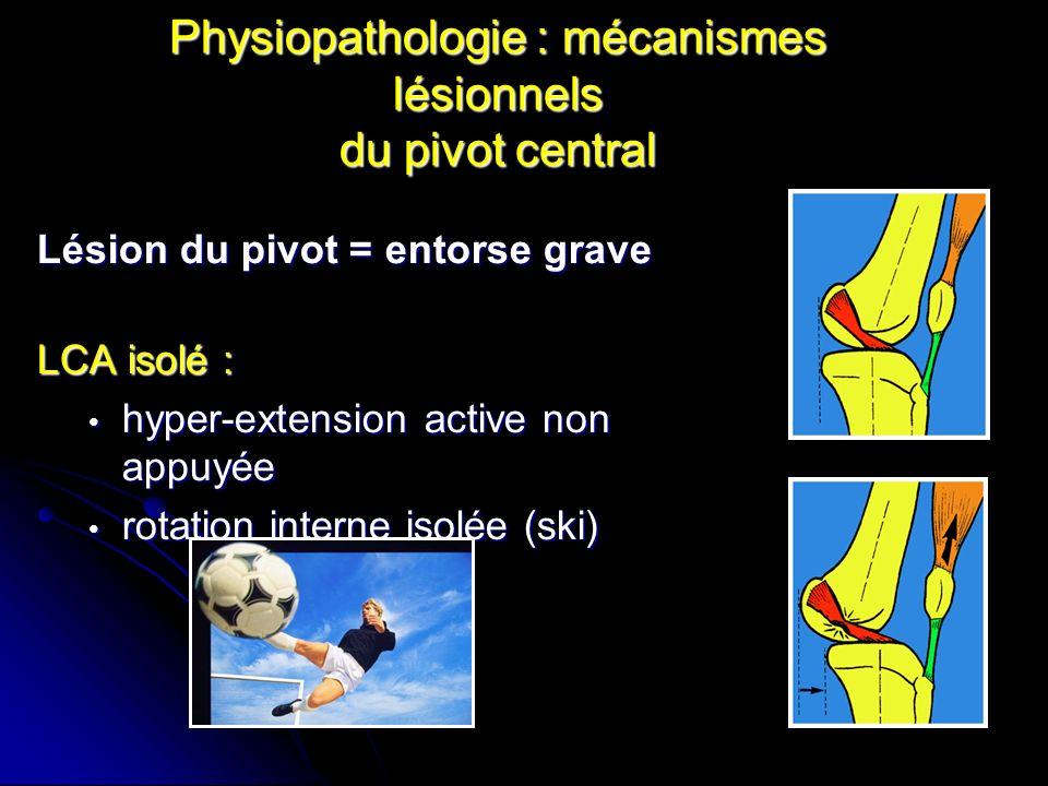 Physiopathologie : mécanismes lésionnels du pivot central Lésions complexes associées au LCA Torsion en valgus-flexion-RE (sport- pivot) séquence lésionnelle : PAPI (ménisque interne) et LLI PAPI (ménisque interne) et LLI Triade antéro-interne (PAPI-LLI-LCA) Triade antéro-interne (PAPI-LLI-LCA) Pentade interne (PAPI-LLI-LCA-LCP- coques condyliennes) Pentade interne (PAPI-LLI-LCA-LCP- coques condyliennes) Luxation du genou Luxation du genou