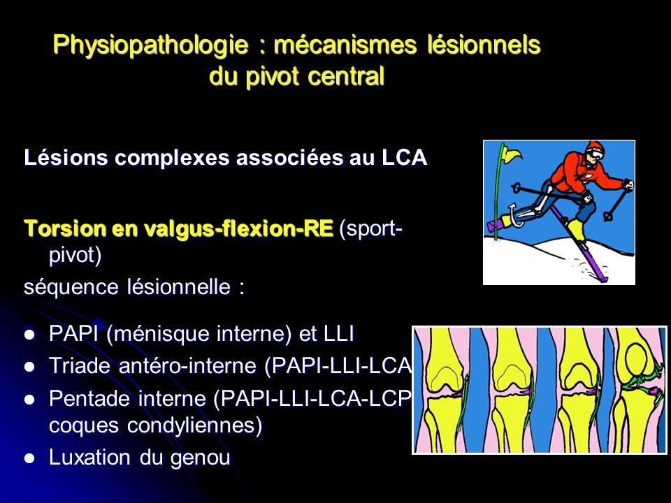 Physiopathologie : mécanismes lésionnels du pivot central Lésions complexes associées au LCA Torsion en varus-flexion-RI (sport- pivot) séquence lésionnelle : LCA LCA Triade antéro-externe (LCA-LLE- PAPE) Triade antéro-externe (LCA-LLE- PAPE) Pentade externe (LCA-LLE-PAPE- LCP-coques condyliennes) Pentade externe (LCA-LLE-PAPE- LCP-coques condyliennes) Luxation du genou Luxation du genou