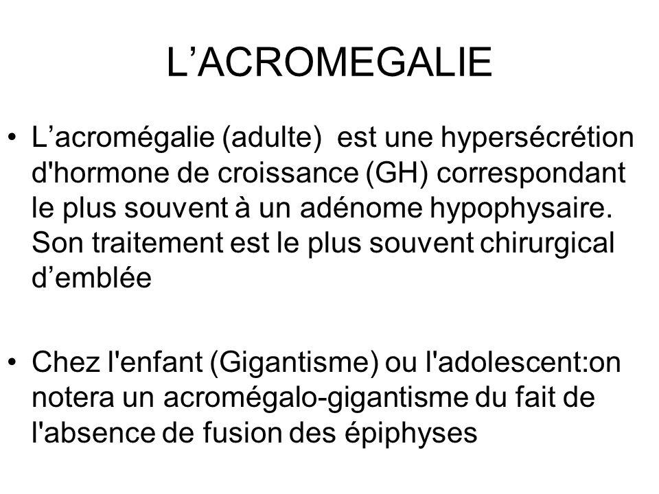 LACROMEGALIE Lacromégalie (adulte) est une hypersécrétion d'hormone de croissance (GH) correspondant le plus souvent à un adénome hypophysaire. Son tr