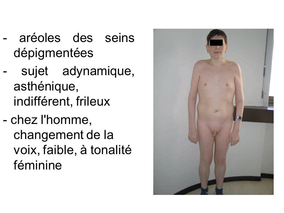- aréoles des seins dépigmentées - sujet adynamique, asthénique, indifférent, frileux - chez l'homme, changement de la voix, faible, à tonalité fémini