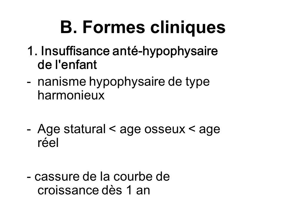 B. Formes cliniques 1. Insuffisance anté-hypophysaire de l'enfant -nanisme hypophysaire de type harmonieux -Age statural < age osseux < age réel - cas