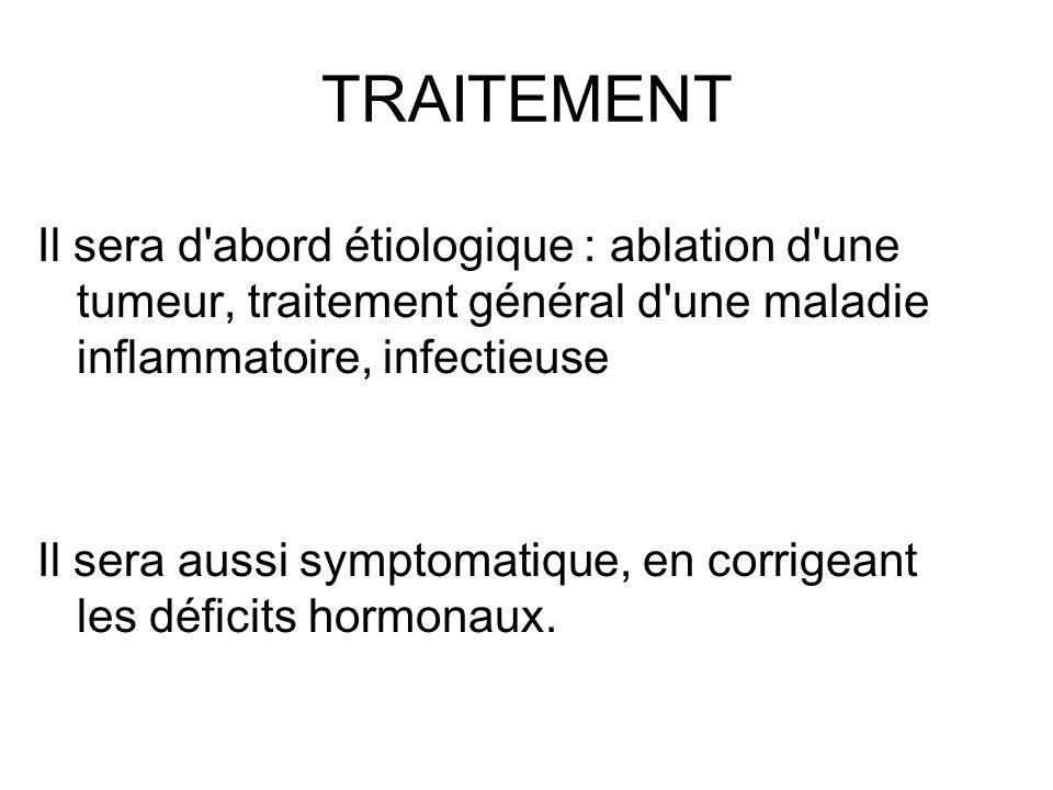 TRAITEMENT Il sera d'abord étiologique : ablation d'une tumeur, traitement général d'une maladie inflammatoire, infectieuse Il sera aussi symptomatiqu