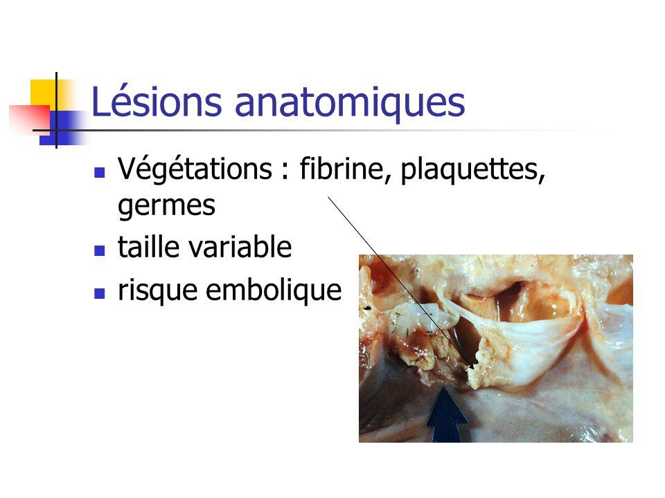 Lésions anatomiques Végétations : fibrine, plaquettes, germes taille variable risque embolique