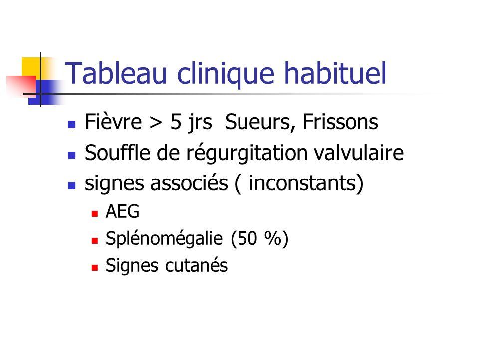 Tableau clinique habituel Fièvre > 5 jrs Sueurs, Frissons Souffle de régurgitation valvulaire signes associés ( inconstants) AEG Splénomégalie (50 %)
