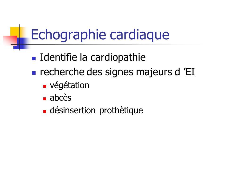 Echographie cardiaque Identifie la cardiopathie recherche des signes majeurs d EI végétation abcès désinsertion prothètique