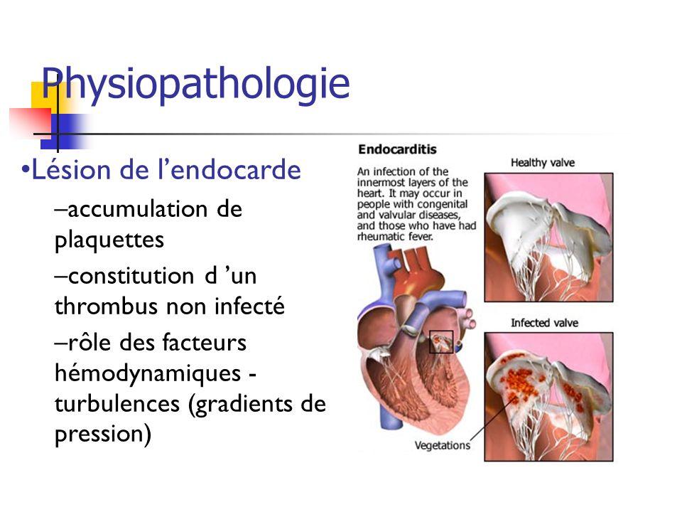 Lésion de lendocarde –accumulation de plaquettes –constitution d un thrombus non infecté –rôle des facteurs hémodynamiques - turbulences (gradients de