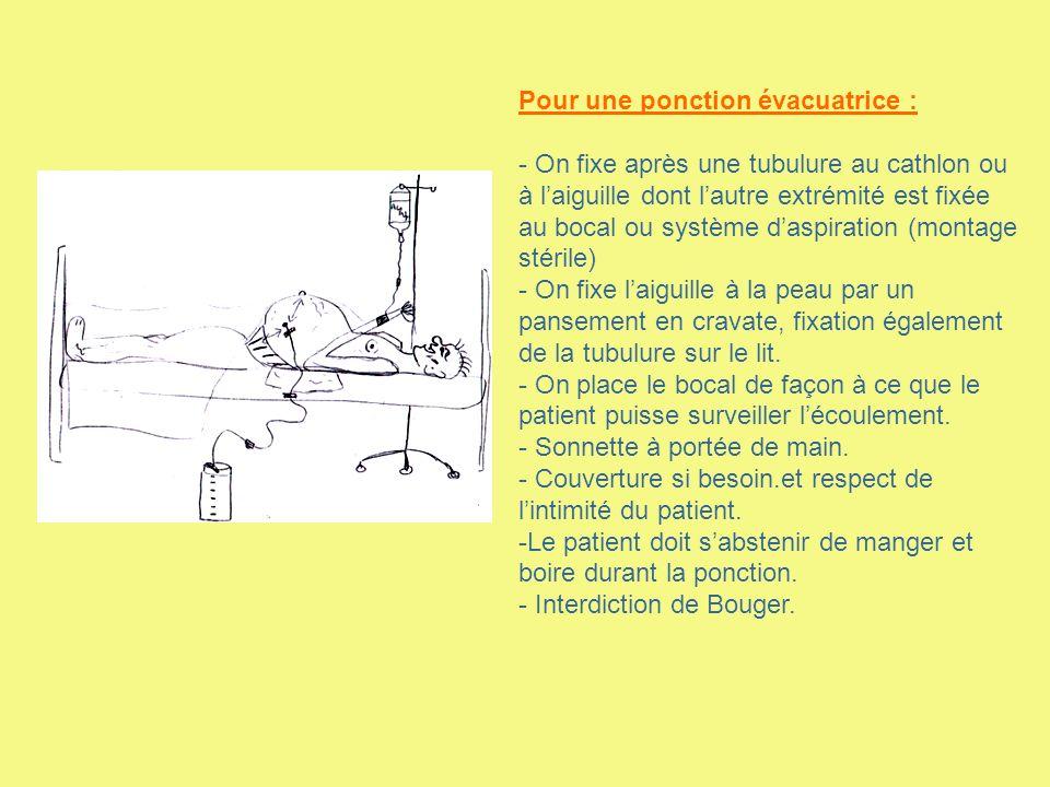 Pour une ponction évacuatrice : - On fixe après une tubulure au cathlon ou à laiguille dont lautre extrémité est fixée au bocal ou système daspiration
