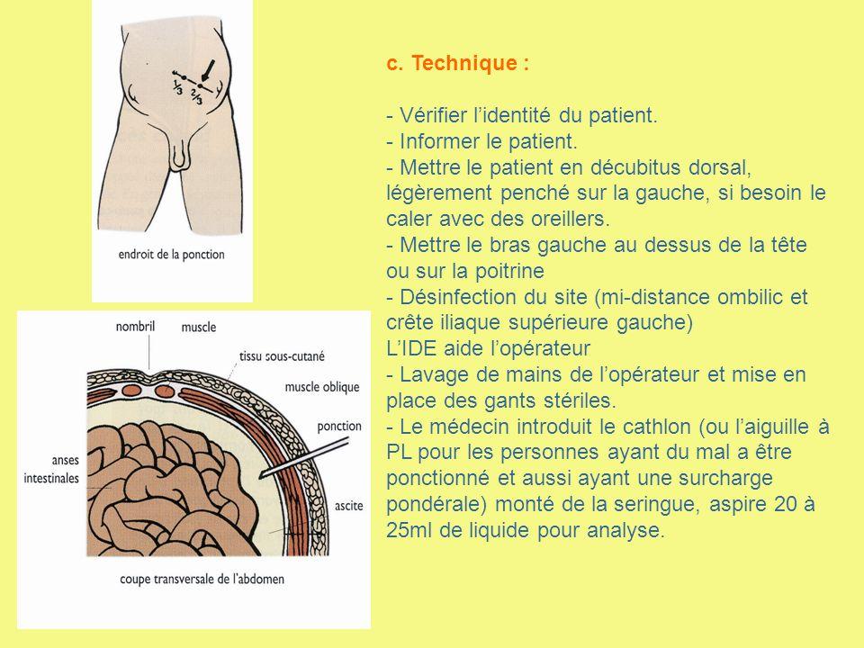 Préparation du patient Avant l hospitalisation En consultation : information sur lexamen et lhospitalisation.