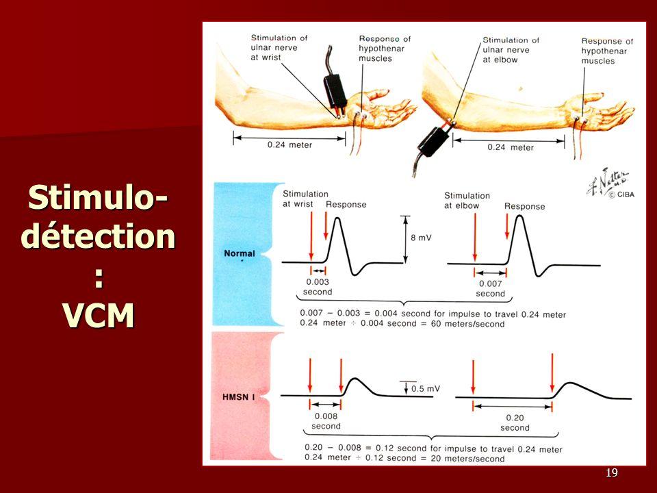 19 Stimulo- détection : VCM
