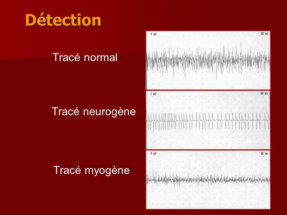 21 Détection Tracé normal Tracé myogène Tracé neurogène