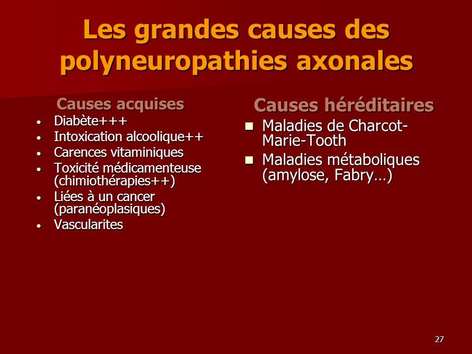 27 Les grandes causes des polyneuropathies axonales Causes acquises Diabète+++ Diabète+++ Intoxication alcoolique++ Intoxication alcoolique++ Carences