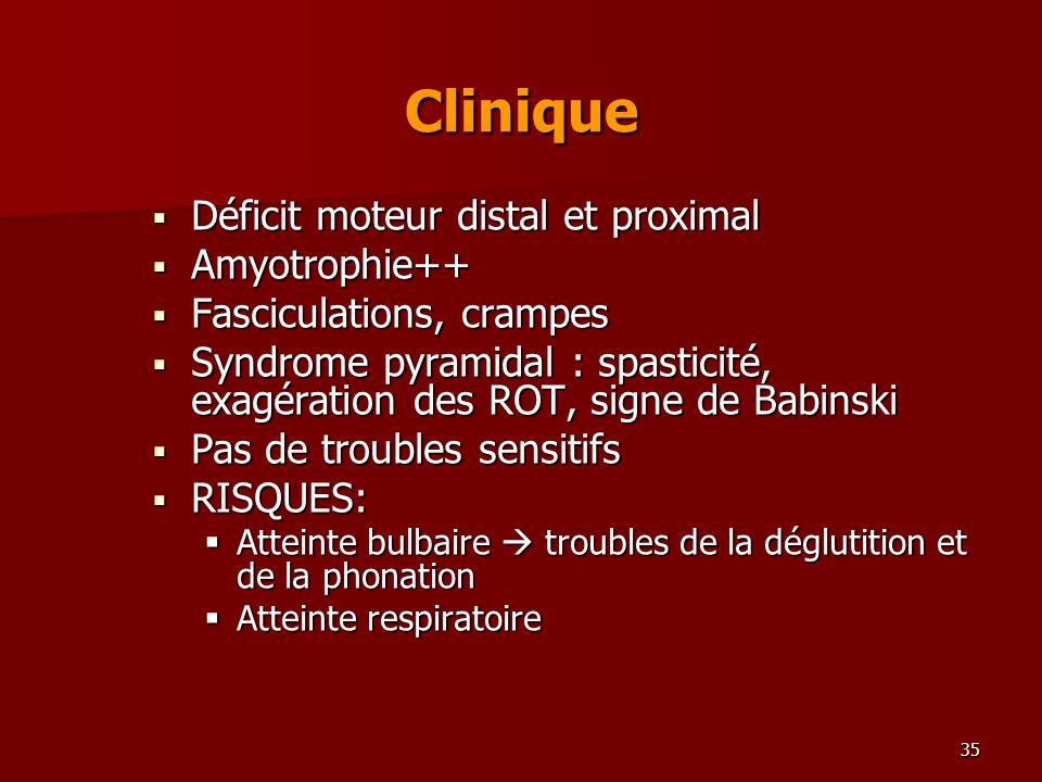 35 Clinique Déficit moteur distal et proximal Déficit moteur distal et proximal Amyotrophie++ Amyotrophie++ Fasciculations, crampes Fasciculations, cr