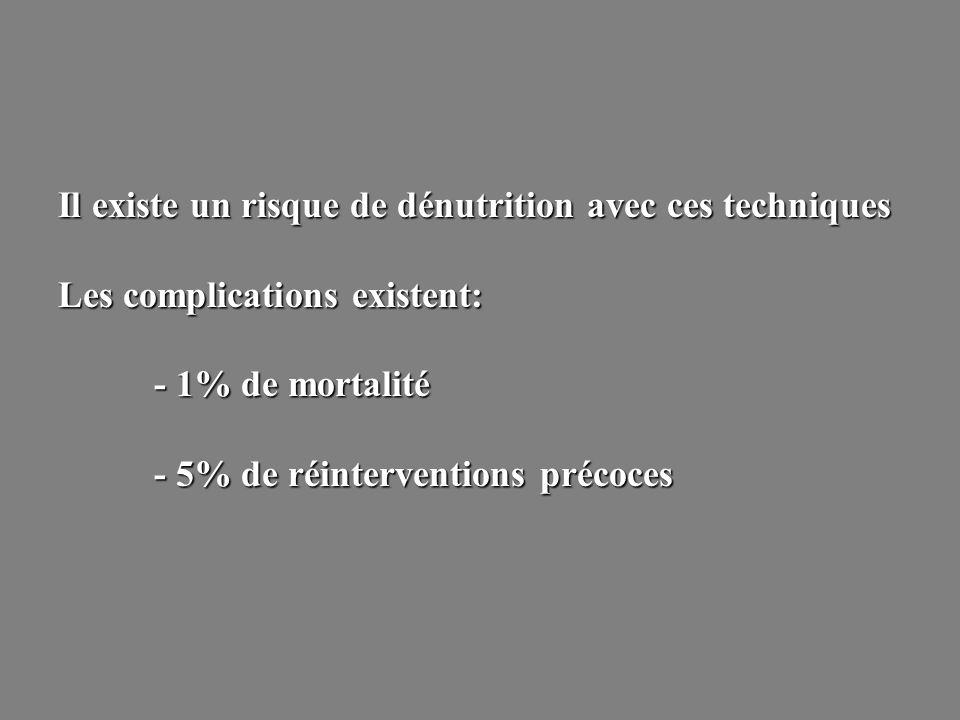 Il existe un risque de dénutrition avec ces techniques Les complications existent: - 1% de mortalité - 5% de réinterventions précoces