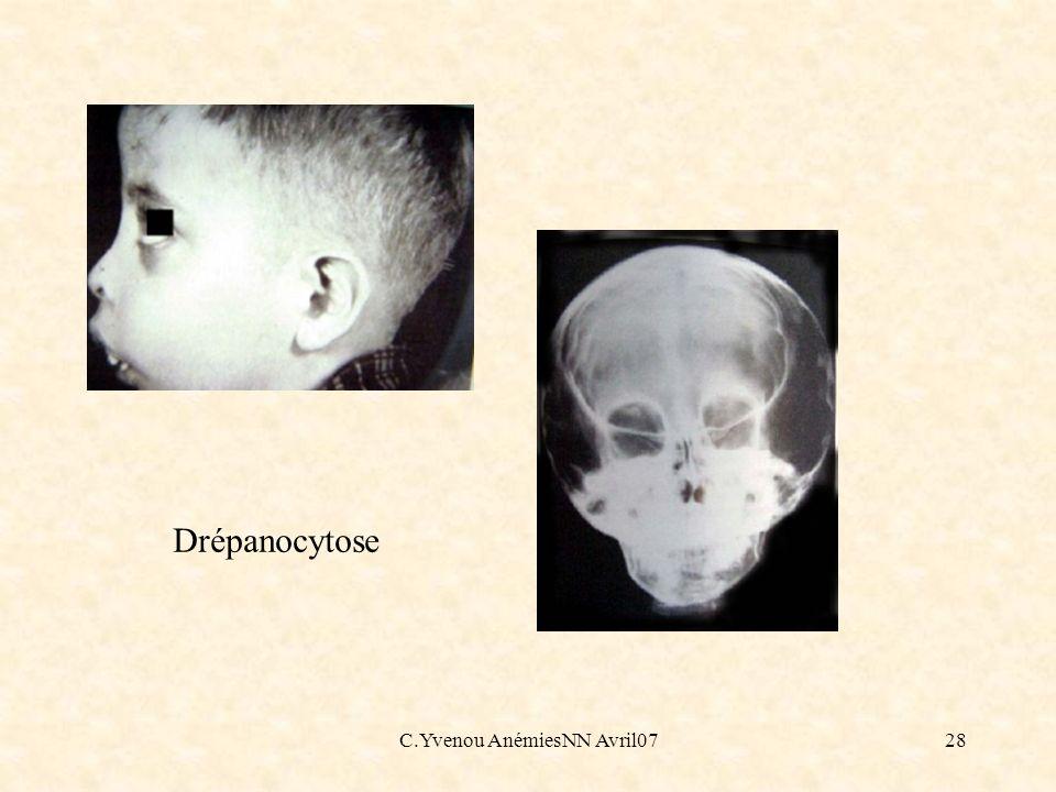 C.Yvenou AnémiesNN Avril0728 Drépanocytose