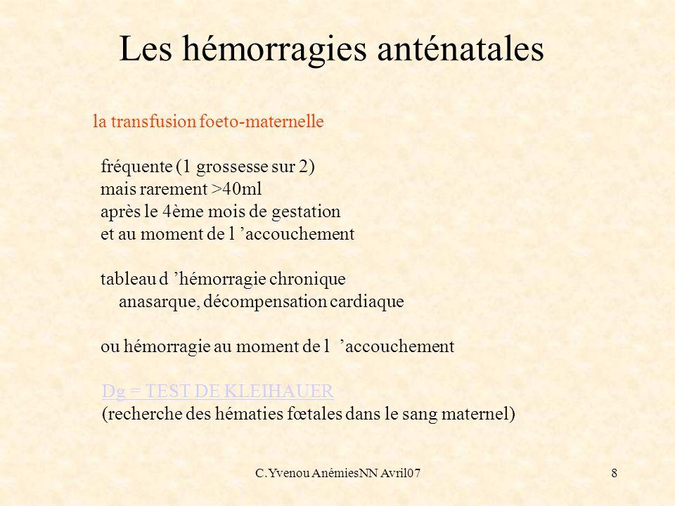 C.Yvenou AnémiesNN Avril079 Les hémorragies anténatales - La transfusion foeto-fœtale : Concerne 10 à 15% des grossesses gémellaires monochoriales (anastomoses entre système artériel d un jumeau et système veineux de l autre) - Autres causes d hémorragies anténatales Traumatisme abdominal Amniocentèse ATC prescrits à la mère