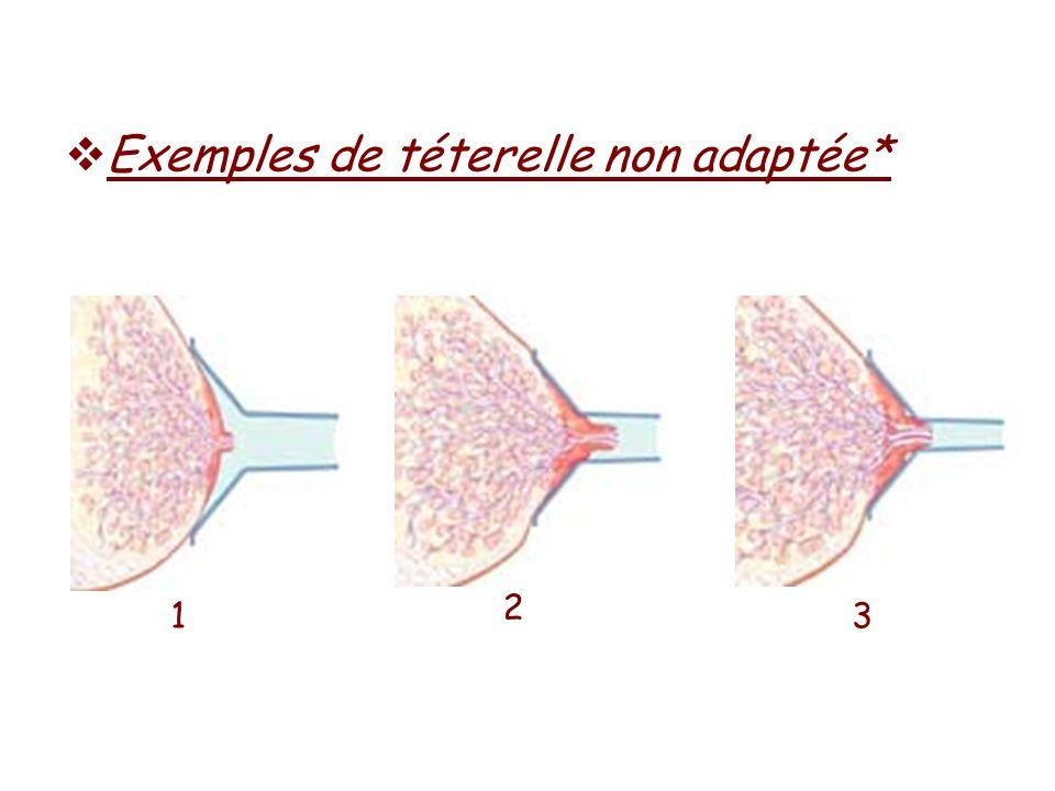 Exemples de téterelle non adaptée* 1 2 3
