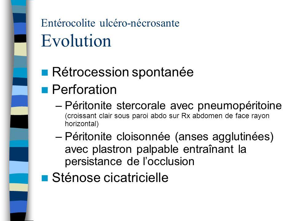Entérocolite ulcéro-nécrosante Evolution Rétrocession spontanée Perforation –Péritonite stercorale avec pneumopéritoine (croissant clair sous paroi ab
