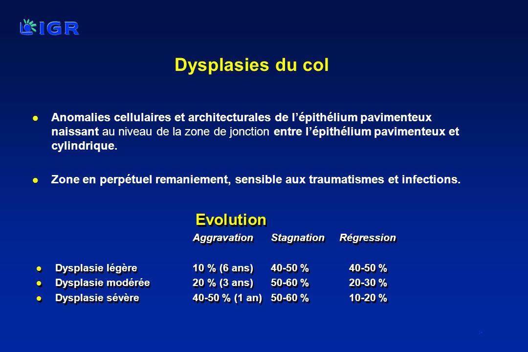 14 Dysplasies du col l Anomalies cellulaires et architecturales de lépithélium pavimenteux naissant au niveau de la zone de jonction entre lépithélium