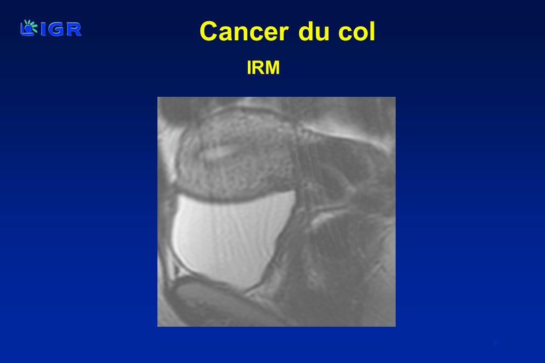 20 IRM Cancer du col