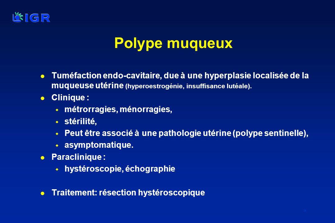 39 Polype muqueux l Tuméfaction endo-cavitaire, due à une hyperplasie localisée de la muqueuse utérine (hyperoestrogénie, insuffisance lutéale). l Cli