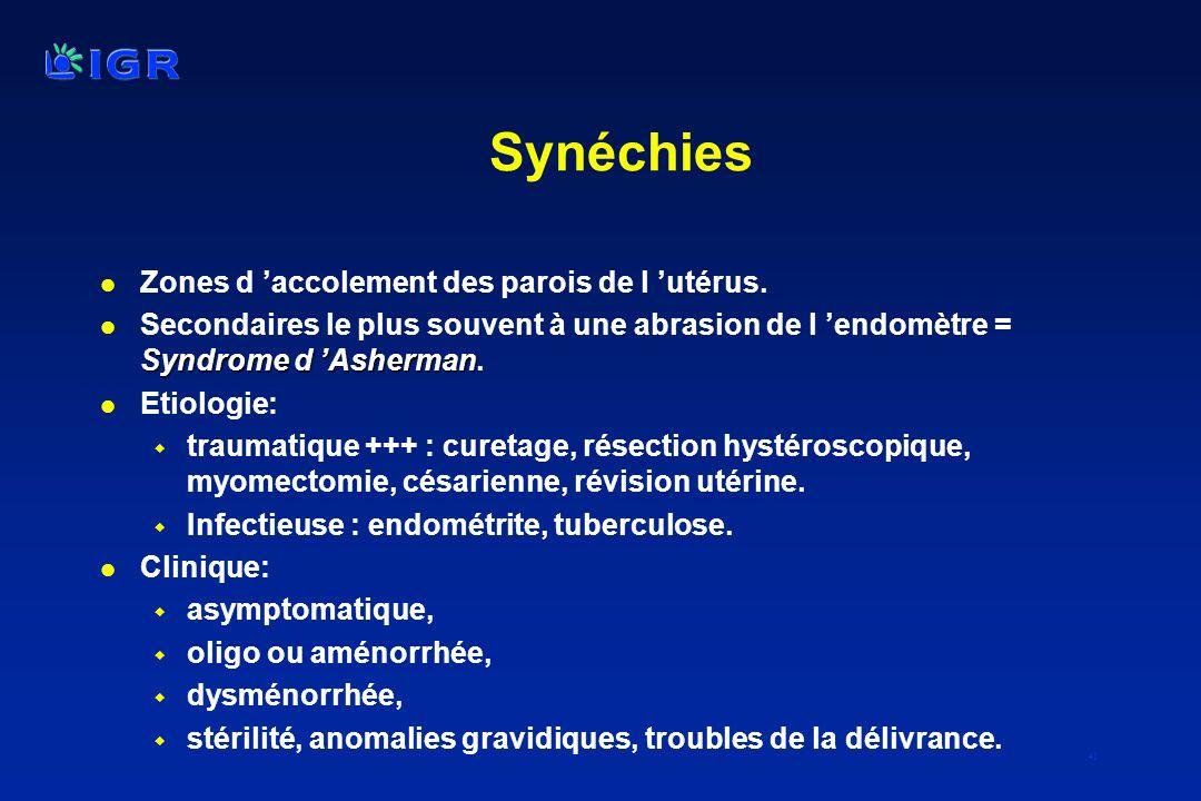 41 Synéchies l Zones d accolement des parois de l utérus. Syndrome d Asherman l Secondaires le plus souvent à une abrasion de l endomètre = Syndrome d