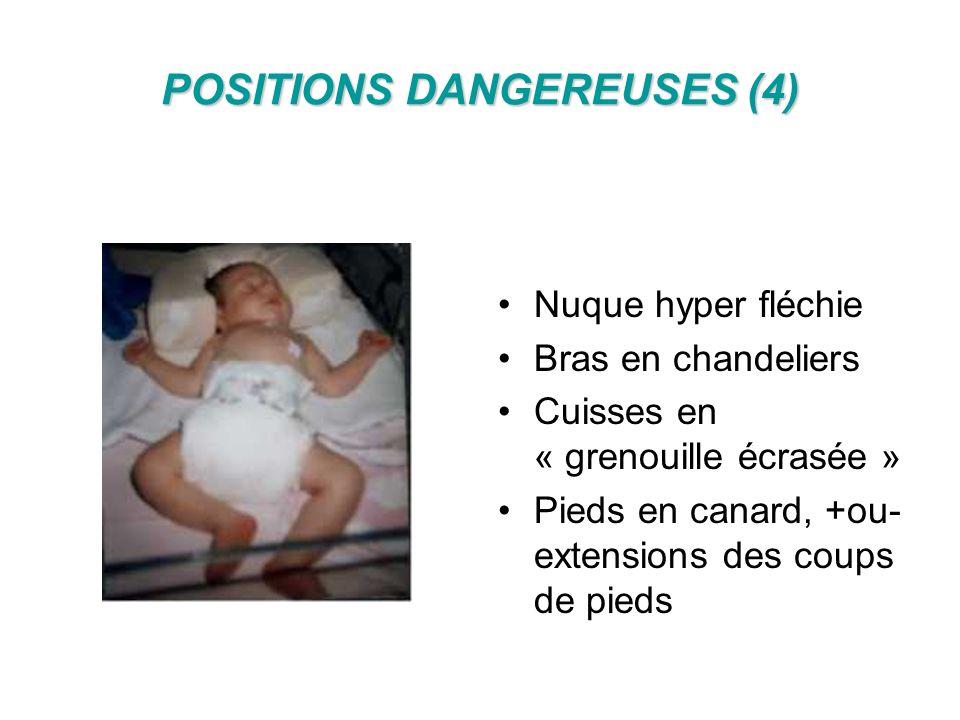 POSITIONS DANGEREUSES (4) Nuque hyper fléchie Bras en chandeliers Cuisses en « grenouille écrasée » Pieds en canard, +ou- extensions des coups de pied
