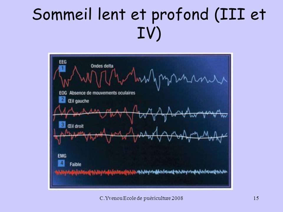 C.Yvenou Ecole de puériculture 200815 Sommeil lent et profond (III et IV)
