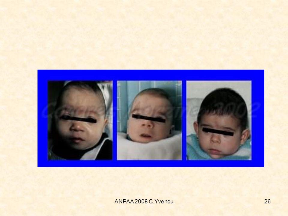 ANPAA 2008 C.Yvenou26