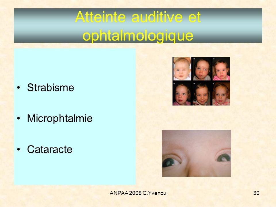 ANPAA 2008 C.Yvenou30 Atteinte auditive et ophtalmologique Strabisme Microphtalmie Cataracte