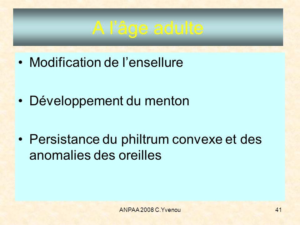 ANPAA 2008 C.Yvenou41 A lâge adulte Modification de lensellure Développement du menton Persistance du philtrum convexe et des anomalies des oreilles