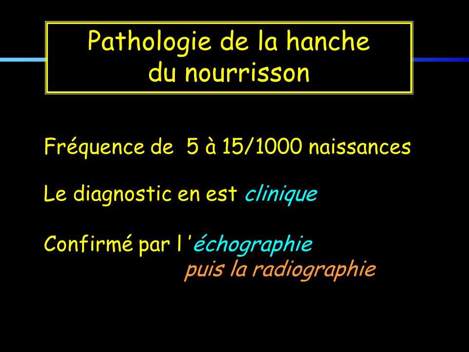 Fréquence de 5 à 15/1000 naissances Le diagnostic en est clinique Confirmé par l échographie puis la radiographie Pathologie de la hanche du nourrisso