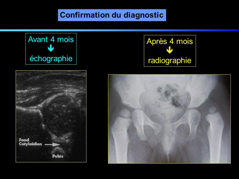 Confirmation du diagnostic Avant 4 mois échographie Après 4 mois radiographie