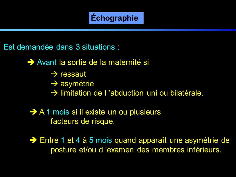 Échographie Est demandée dans 3 situations : Avant la sortie de la maternité si ressaut asymétrie limitation de l abduction uni ou bilatérale. A 1 moi