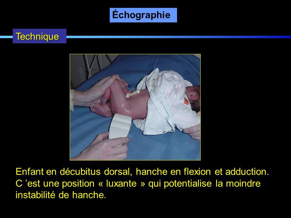 Échographie Technique Enfant en décubitus dorsal, hanche en flexion et adduction. C est une position « luxante » qui potentialise la moindre instabili