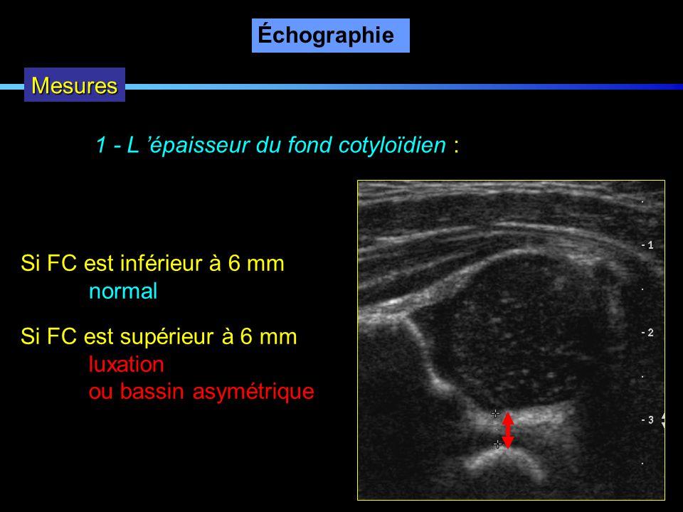 Échographie Mesures 1 - L épaisseur du fond cotyloïdien : Si FC est inférieur à 6 mm normal Si FC est supérieur à 6 mm luxation ou bassin asymétrique
