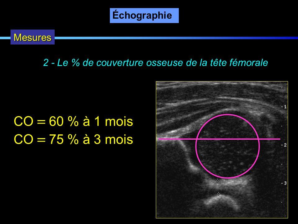 Échographie Mesures 2 - Le % de couverture osseuse de la tête fémorale CO 60 % à 1 mois CO 75 % à 3 mois