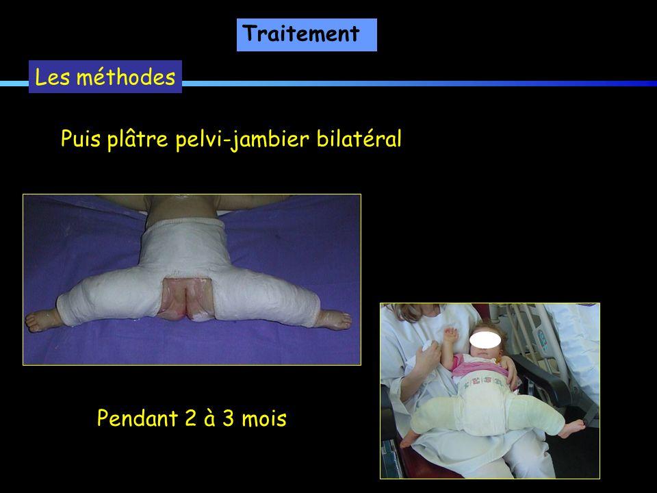 Les méthodes Puis plâtre pelvi-jambier bilatéral Pendant 2 à 3 mois Traitement