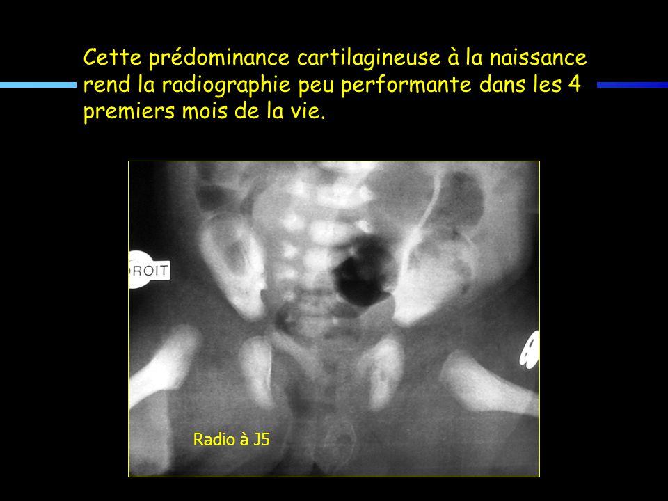 Cette prédominance cartilagineuse à la naissance rend la radiographie peu performante dans les 4 premiers mois de la vie. Radio à J5